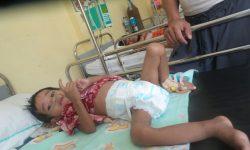 RSUD Nunukan Temukan 130 Balita Penderita TBC