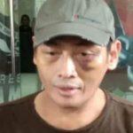 Sekjen PA 212 Tersangka: Dituduh Terlibat Aniaya Relawan Jokowi